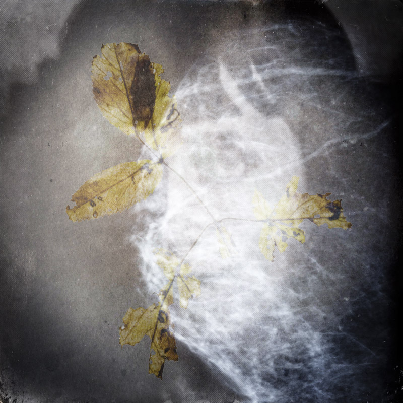Fotoscopia, Mammografia. © Alessandra Calò