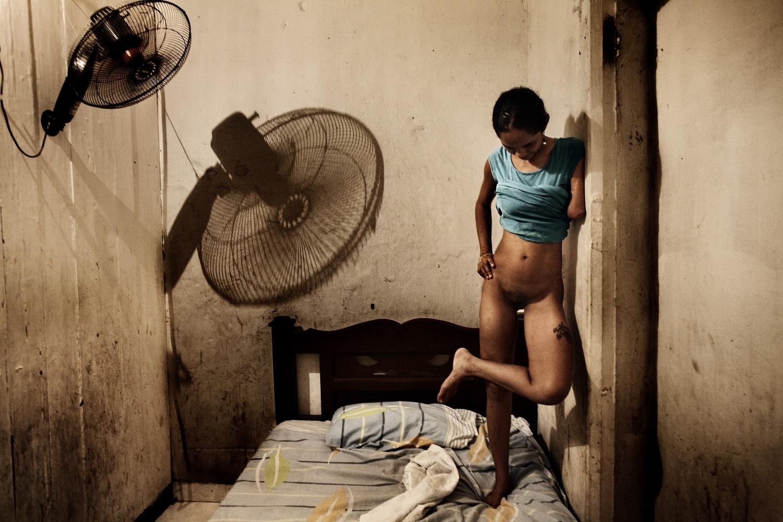 Salvador de Bahia, Brasile, 2009. Gisela è una prostituta di 21 anni a cui stato tagliato un braccio per non aver restituito un debito contratto per aver comprato il paco.