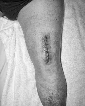 Jacopo Benassi mostra camera torino ferita gamba