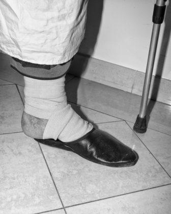 Jacopo Benassi mostra camera torino piede fasciato